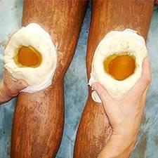 Тендинит локтевого сустава: причины, симптомы, диагностика, методы лечения