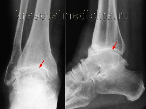 Видео: консервативное лечение артроза голеностопного сустава. Д. Е. Каратеев (Москва, Россия)