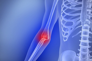 Бурсит локтевого сустава: лечение в домашних условиях, как лечить народными средствами
