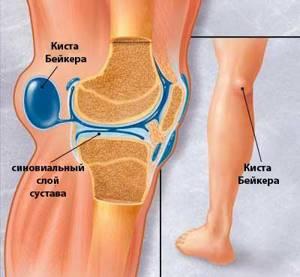 Болезни коленного сустава: самые частые диагнозы и способы лечения