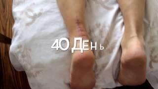 Повреждение ахиллова сухожилия: причины и виды травмы, симптоматика и способы диагностики, первая доврачебная помощь и последующая терапия