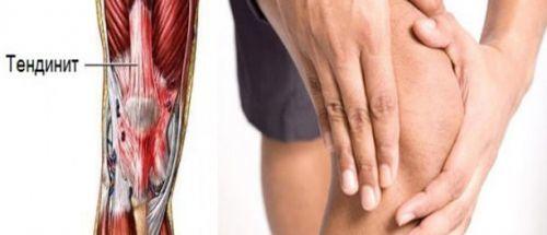 Болят и хрустят колени: чем лечить