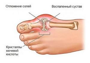 Как лечить подагру на ногах в домашних условиях народными средствами