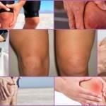 Менископатия коленного сустава: симптомы и лечение