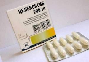 Препараты для лечения суставов: полный список лекарств