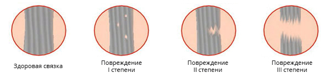 Разрыв связок голеностопного сустава: лечение, причины, симптомы