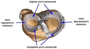 Лечение мениска коленного сустава без операции в домашних условиях