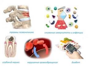 Остеомиелит — лечение, симптомы и перспективы выздоровления