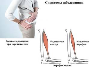 Видео: асептический некроз, экспертное мнение Гончарова Н.А и Панова А.А.