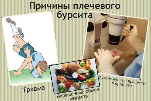 Как лечить бурсит плечевого сустава в домашних условиях: народные рецепты