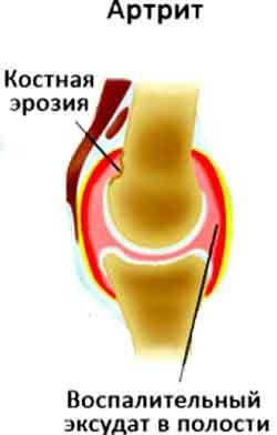 Видео: что нужно принимать для суставов от боли