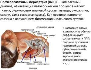 Плечелопаточный периартрит: комплекс упражнений Попова, видео ЛФК