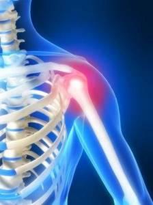 Эпикондилит плечевого сустава: симптомы, диагностика и лечение