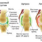 Лечение боли в коленных суставах при помощи народных средств