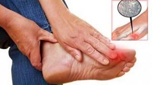 Подагра: признаки, симптомы, диагностика и лечение