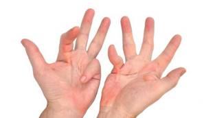 Контрактура Дюпюитрена: лечение кисти