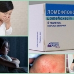 Антибиотики при воспалении, артрите и артрозе суставов и костей