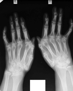 Чем лечить артрит кистей рук: способы, медикаменты и рецепты