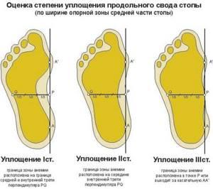 Видео доклад: плоскостопие, факты о заболевании. Е.А. Мирошникова (Москва)