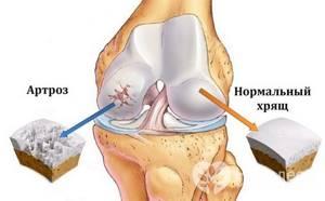 Остеоартрит коленного сустава: симптомы, стадии, лечение