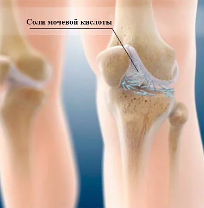 Подагра коленного сустава: причины, симптомы, диагностика, методы лечения
