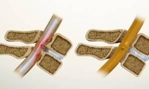 Лечение стеноза позвоночного канала: описание способов