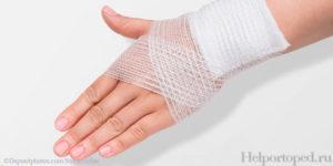 Тендовагинит лучезапястного сустава: что такое, как лечить заболевание