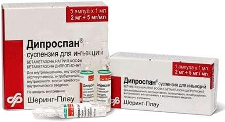 Блокада локтевого сустава: перечень медикаментов, показаний и осложнений