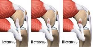 Разрыв передней крестообразной связки коленного сустава: лечение