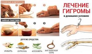 Гигрома запястья (лучезапястного сустава кисти): симптомы, лечение