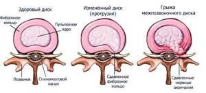 Протрузия дисков шейного отдела позвоночника: причины, симптомы,лечение