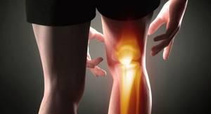 Оценка предрасположенности к развитию артроза коленного сустава