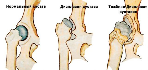Дисплазия тазобедренных суставов: причины, симптомы, лечение