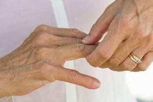 Лечение остеоартроза пальцев рук: медикаменты, мази, физиотерапия