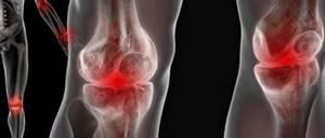 Артроз коленного сустава 1 степени: лечение, симптомы, причины