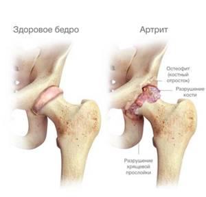 Боль в тазобедренном суставе лежа на боку ночью: причины