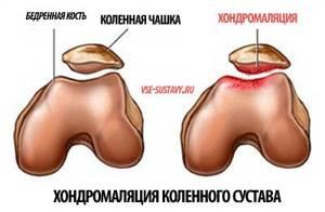 Хондромаляция коленного сустава: лечение медикаментами и хирургически