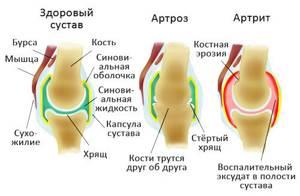 Артрит и артроз разница: отличия в симптомах и лечении