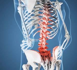 Что такое синдром конского хвоста: симптомы, причины, лечение, профилактика