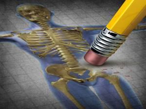 Видео: лечение и профилактика переломов шейки бедренной кости