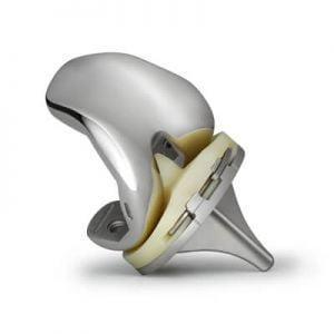 Эндопротез коленного сустава, виды, срок службы