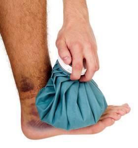 Растяжение связок голеностопа: лечение, симптомы, причины травмы