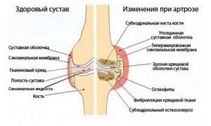 Видео: миниинвазивное лечение артрозов и артритов коленного сустава. Кузнецова В.П. (Воронеж, Россия)