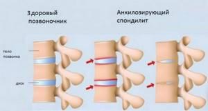 Болит шея сзади: причины появления боли, лечение