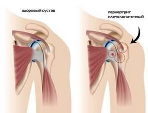 Гимнастика при плечелопаточном периартрите, упражнения ЛФК