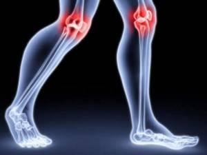 Хруст в коленях: причины и лечение, почему хрустят колени и что делать