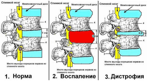 Хруст в шее при поворотах головы: причины и лечение