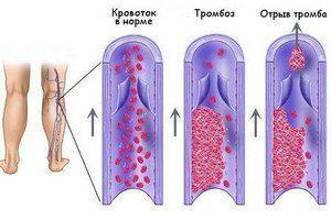 Боли в мышцах ног выше колен: причины и болезни, вызывающие боли
