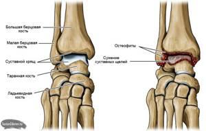 Артроз 2-й степени: когда можно избежать операции