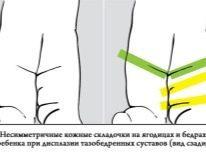 УЗИ тазобедренных суставов новорожденных: норма и патология